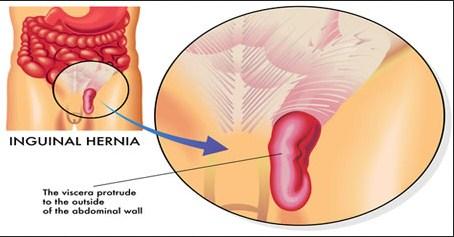 Symptoms Hernia